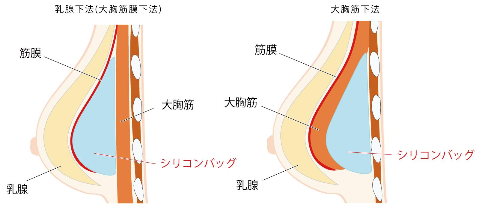 シリコンバッグ 人工乳腺 豊胸 大阪 バストアップ