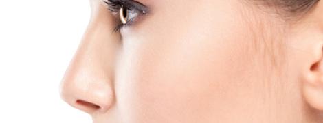 鼻 アップノーズ 美容外科 美容整形