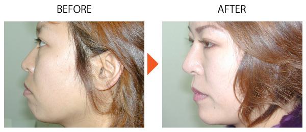 アゴプロテーゼ 人口軟骨 インプラント 症例
