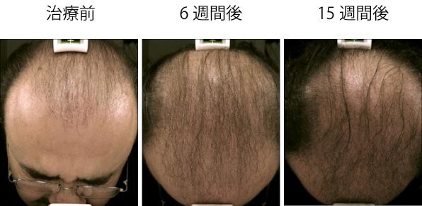 benev ベネブ 毛髪再生 発毛 育毛 AGA ハゲ治療 薄毛 症例