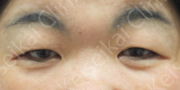 眼瞼下垂 恵聖会クリニック 保険 二重まぶた まぶたのたるみ取り 症例