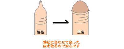 包茎 ほうけい かんとん 男性器 大阪 泌尿器形成
