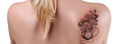 タトゥー除去 美容外科 形成外科