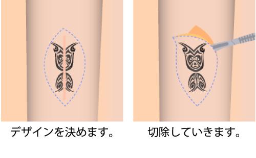 タトゥー除去 刺青除去 入れ墨除去 アートメイク除去 大阪 切除術
