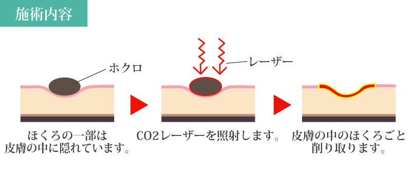 ホクロ除去 ホクロ取り CO2レーザー 流れ