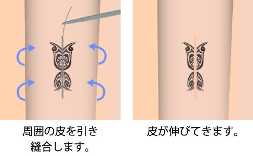 タトゥー除去 刺青除去 入れ墨除去 アートメイク除去 大阪