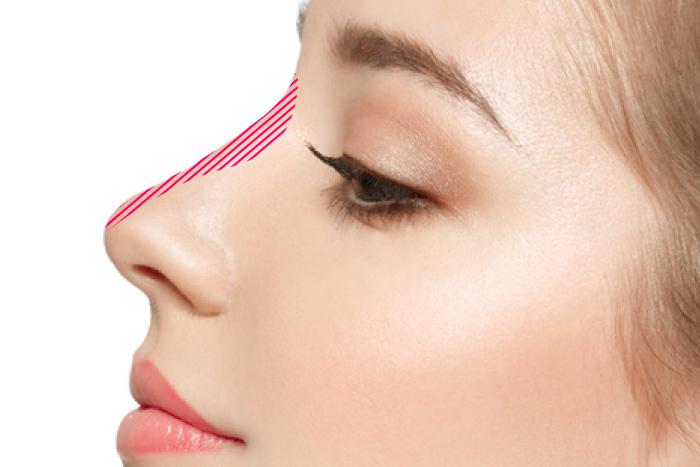 鼻プロテーゼ 隆鼻 インプラント 人工軟骨 アップノーズ 鼻筋 大阪 鼻を高く