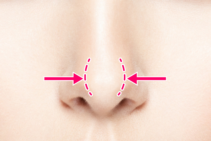 鼻尖形成 だんご鼻 鼻先 隆鼻 鼻尖縮小 大阪