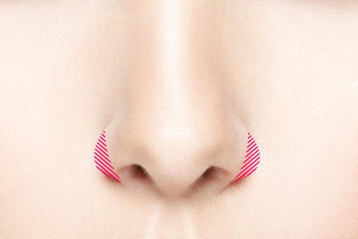 小鼻縮小 鼻翼縮小 あぐら鼻 大阪