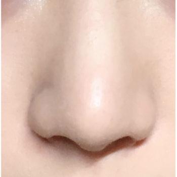 鼻尖形成と小鼻縮小でスッキリとした鼻へ
