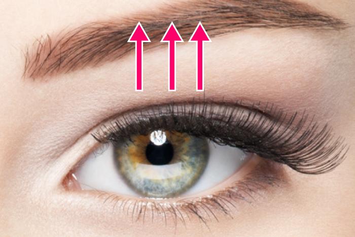 切らない 眼瞼下垂 経結膜的眼瞼下垂 大阪