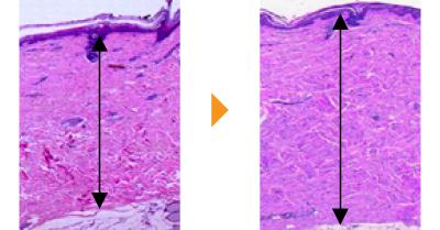 グロスファクター メソスキン エイジングケア アンチエイジング 成長因子 若返り