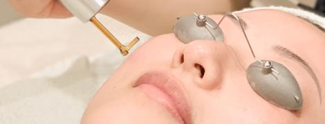 ピコレーザー しみ 美容皮膚科