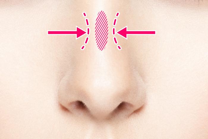 鼻骨形成術(鼻骨骨切り術)