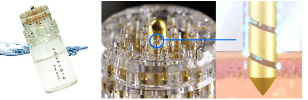 サイトカインブースター CytB-neo hscm100 臍帯血幹細胞 毛髪再生 発毛 育毛 ハゲ AGA 薄毛 オスモインジェクター