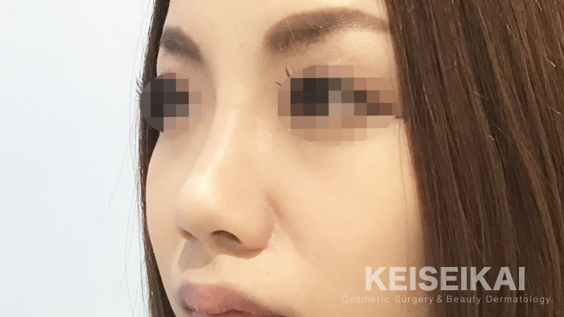 鼻筋を自然に高く。隆鼻術(鼻のプロテーゼ)