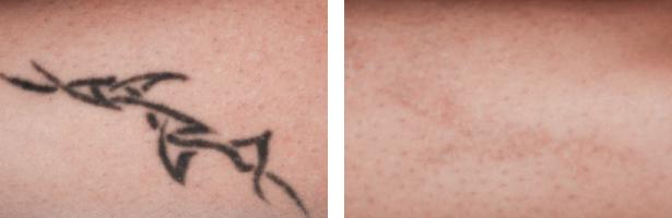ピコレーザー タトゥー除去 PICO 症例写真