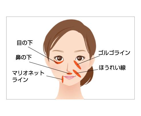 PRP注入療法(自己多血小板血漿注入療法)