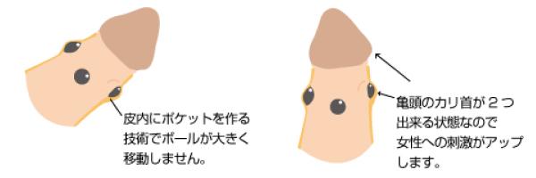 シリコンボール 男性器 大阪 泌尿器形成