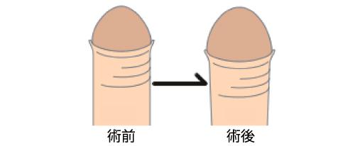 亀頭増強術 男性器 大阪 泌尿器形成