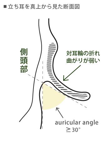 対耳輪の折れ曲がりが弱い立ち耳の断面図