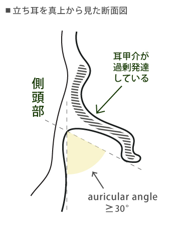 耳甲介が過剰発達した立ち耳の断面図