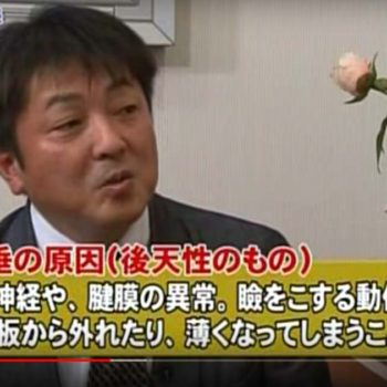 『大きな瞳で若く見せる』というテーマで美容情報テレビ番組に出演しました。