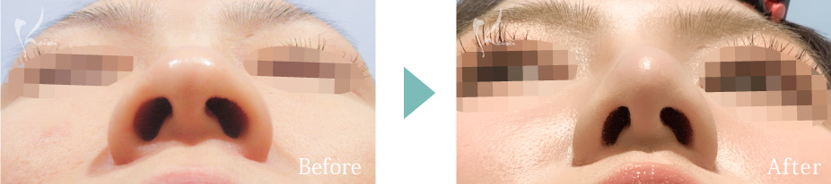 隆鼻術(プロテーゼ)+鼻尖形成+小鼻縮小(中間法)+鼻中隔延長(耳介軟骨移植)の症例写真