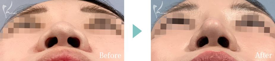 隆鼻術(プロテーゼ)+鼻尖形成+鼻中隔延長(耳介軟骨移植)の下からの症例写真