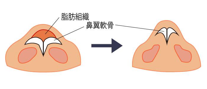 鼻尖形成 だんご鼻 鼻先 隆鼻 鼻尖縮小 大阪 鼻翼
