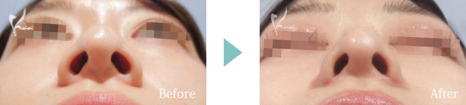 小鼻縮小(中間法)の症例画像
