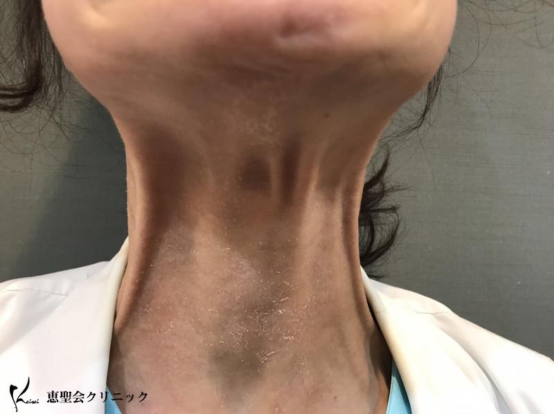 同じ人間の首とは、、、