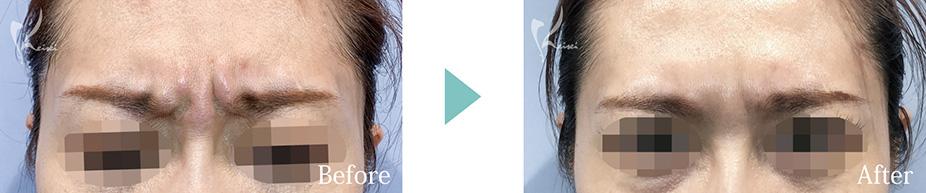 眉間へのボトックス注入の症例
