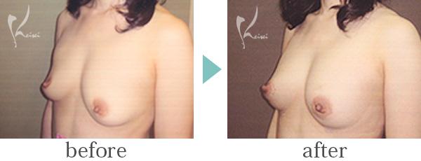 脂肪注入法豊胸術