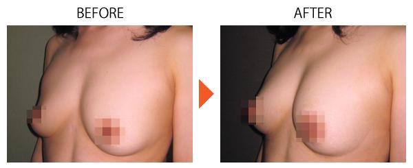 脂肪注入豊胸 豊胸 大阪 バストアップ 症例 女性特有の悩み