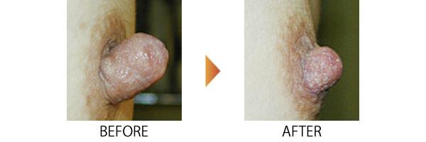 乳頭縮小 乳頭 大阪 大きい乳首 女性特有の悩み 症例