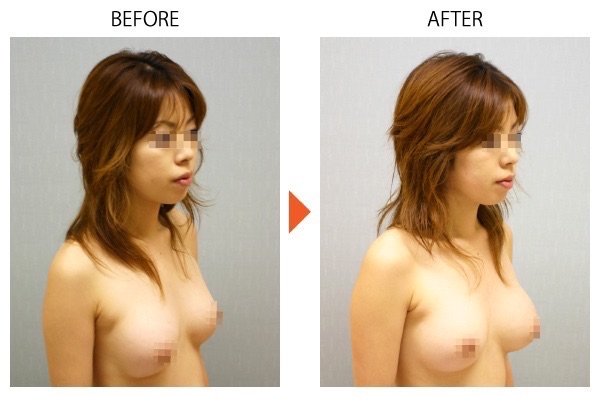 シリコンバッグ 人工乳腺 豊胸 大阪 バストアップ 症例