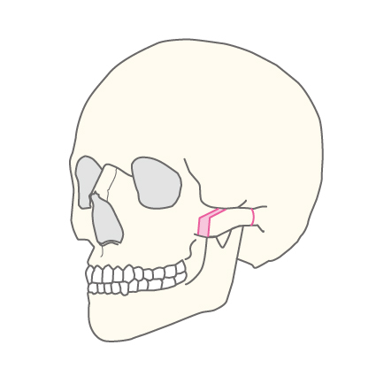 複合型頬骨形成術