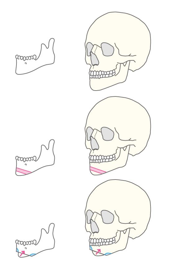 中抜き法(顎短縮、顎前進、顎後退)