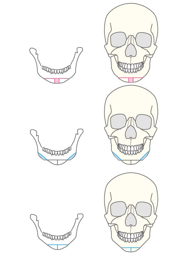 垂直骨切り法