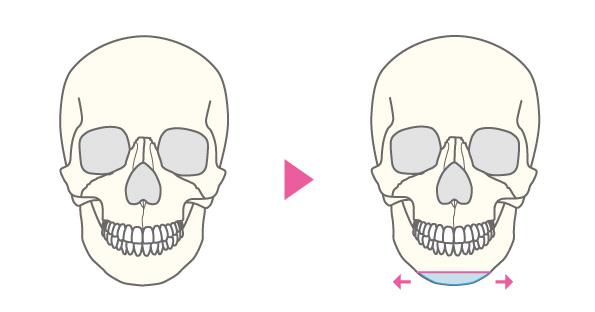 水平骨切り(顎前進、顎後退、左右移動)