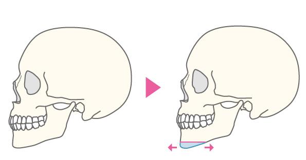 水平骨切り(顎前進・顎後退)