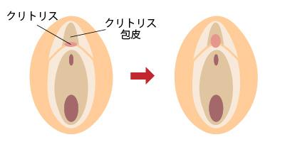 クリトリス 包茎 女性器形成 大阪 女性特有の悩み