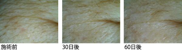 サイトカインブースター 臍帯血 再生因子 hscm100 再生医療 エイジングケア アンチエイジング 症例