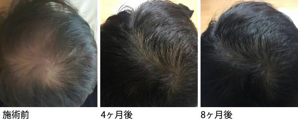 サイトカインブースター CytB-neo hscm100 臍帯血幹細胞 毛髪再生 発毛 育毛 ハゲ AGA 薄毛 症例