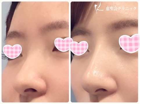 お鼻のプロテーゼ♡