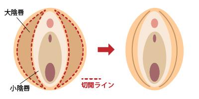 大陰唇縮小 女性器形成 大阪 女性特有の悩み