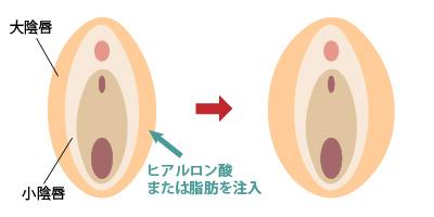 大陰唇増大 女性器形成 大阪 女性特有の悩み