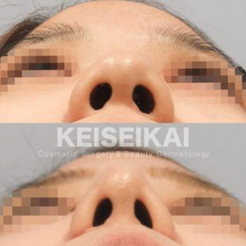 小鼻縮小 鼻尖形成 天木医師 恵聖会クリニック ブログ