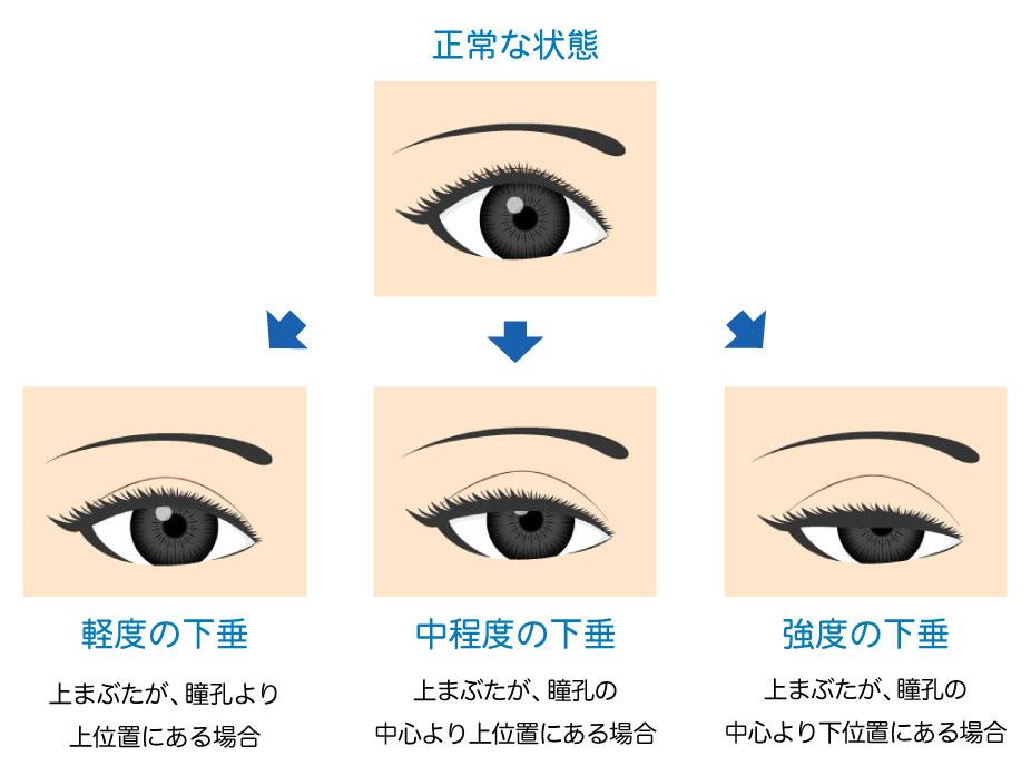 眼瞼下垂の軽度中程度強度の症状を表したイラスト